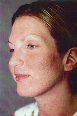 После процедуры на коже в зонах обработки развивается отек и образуется корка светло-коричневого цвета, которая отходит к 7-8 дню после процедуры. Вновь образованная, более молодая кожа имеет розовый оттенок по сравнению с окружающими тканями.