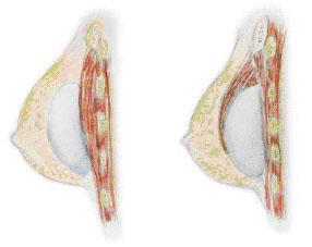 Субгландулярное субмускулярное расположение имплантата