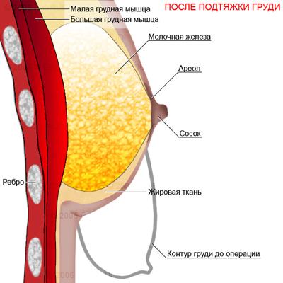 Увеличения бюста eveline