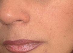 Если же ''родинка'' возвышается над поверхностью кожи, то ее автоматически причисляют к бородавкам.