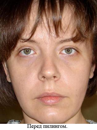аллергия отекли глаза что делать
