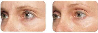 коррекция морщин в области внешнего угла глаза («гусиных лапок»)