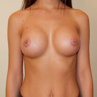 Как выглядит импланты 300 мл груди