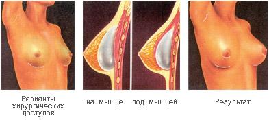 Ассиметрия груди пластика